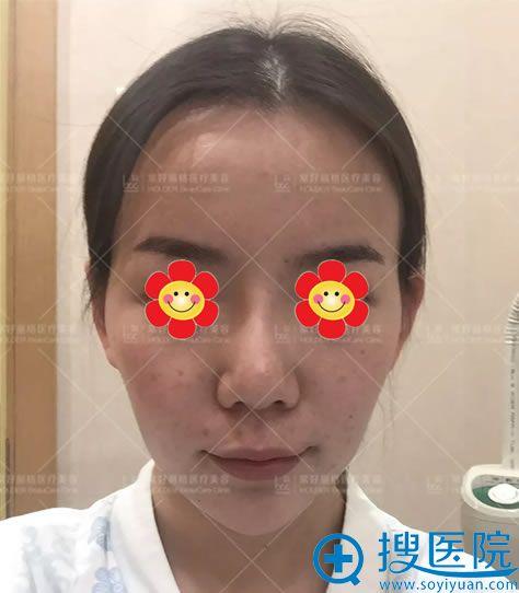 填充术前泪沟明显和面部消瘦