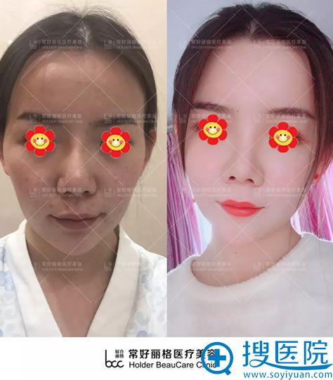 北京常好丽格脂肪填充案例对比图