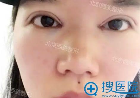 选择北京西美刘野做双眼皮当天效果