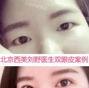 看了北京西美刘野和吕薇医生双眼皮案例效果 选择刘主任做眼睛