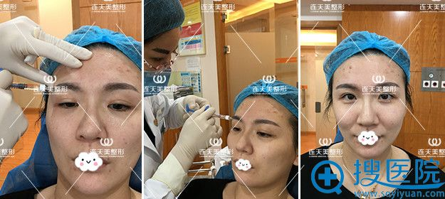 南京连天美玻尿酸填充苹果肌真人案例