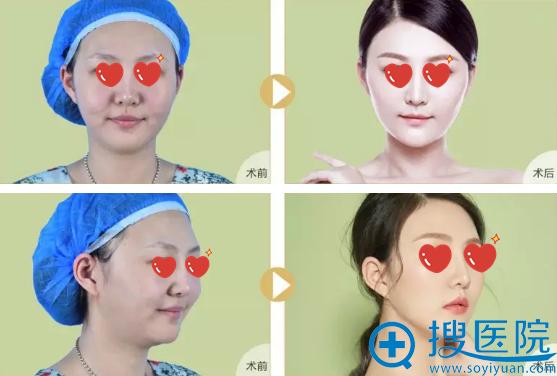 洛阳协和线雕+玻尿酸填充瘦脸前后对比照
