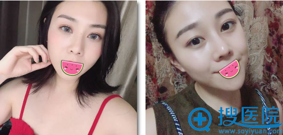 福州名韩皮秒祛斑术后美照