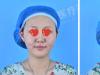 洛阳安和瘦脸真实案例:全面部线雕+玻尿酸填充轻松打造小V脸