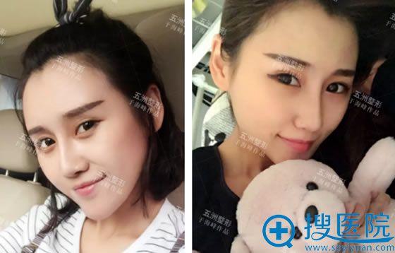 北京五洲于海峰脂肪填充案例60天效果