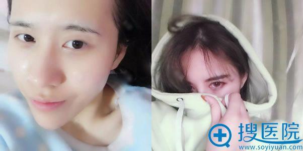 找北京郑仕平做双眼皮手术前