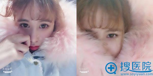 在北京薇琳做完双眼皮2周效果