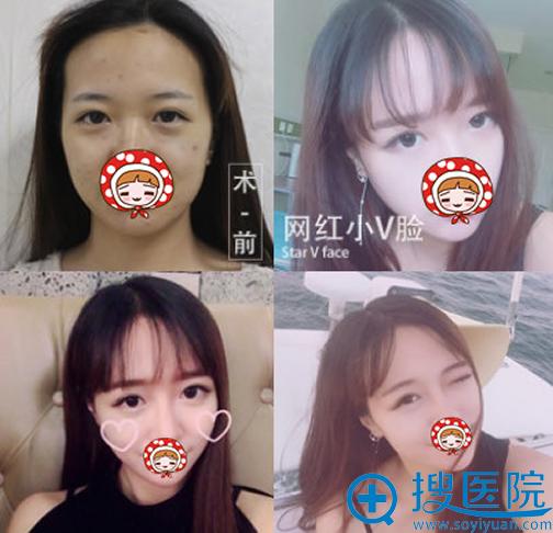 青岛诺德医院瘦脸针案例