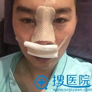 大连爱德丽格膨体鼻部综合整形案例