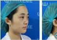 相貌平平的我找杭州华山连天美刘军做了自体耳软骨鼻综合隆鼻