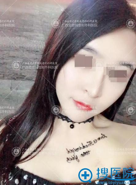 广西南宁爱思特高伟削骨案例术后一个月图片