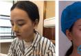 找长沙南湖整形医院张军辉做鼻综合去到医院发现做隆鼻的人好多