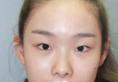 我闭眼无痕的双眼皮效果是深圳希思李俊眼综合达到的