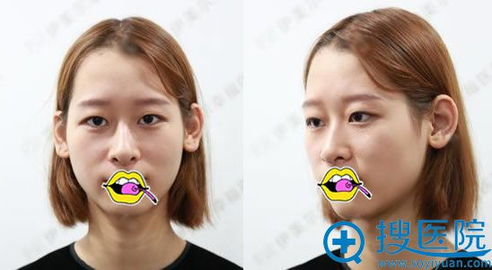 在北京伊美尔做双眼皮手术前