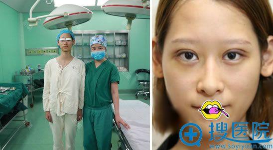 在伊美尔刚做完双眼皮手术效果