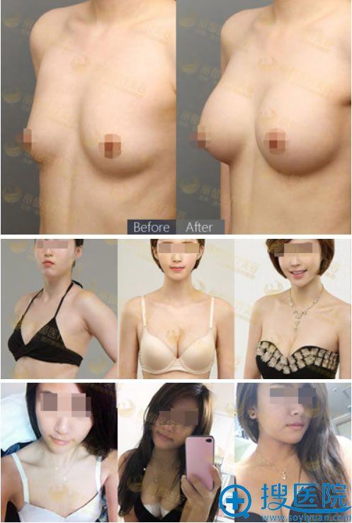 北京丽都假体隆胸手术案例图
