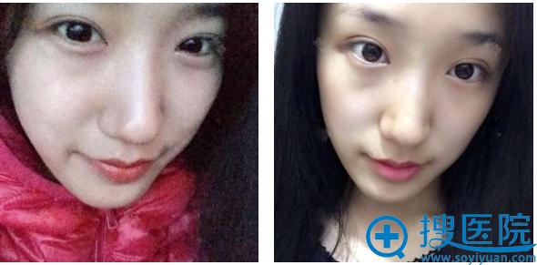 上海瑰康整形医院王屏双眼皮案例术后一个月图片