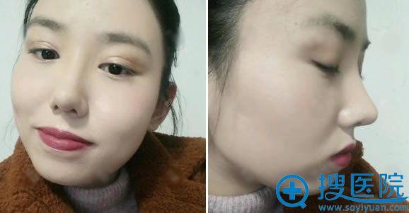 做鼻综合隆鼻手术30天效果
