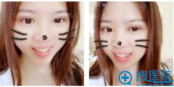 上海时光整形医院郑志玉开的双眼皮案例一周恢复图