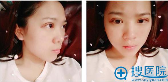 找上海时光整形医院郑志玉开完双眼皮四天了