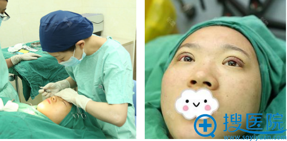 上海时光整形医院郑志玉双眼皮手术即刻效果图