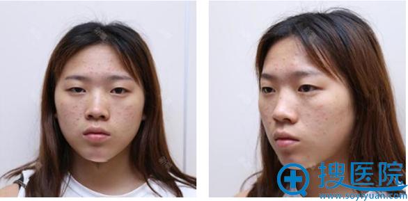 术前单眼皮照片