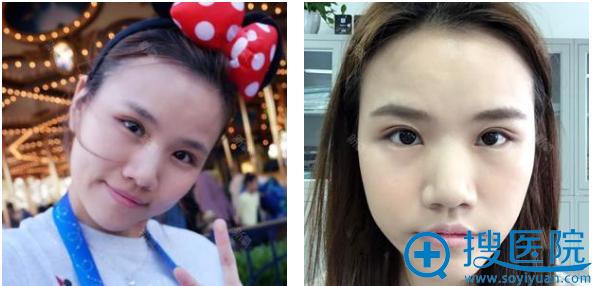 上海薇琳医美孙荣双眼皮案例术后一个月自拍