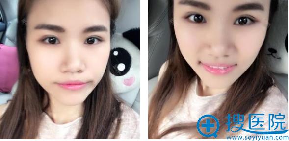 上海薇琳医美孙荣双眼皮案例术后三个月图片