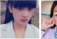 通过对比上海美莱和华美整形医院的案例选择佀同帅做了双眼皮