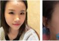 我对这次去上海薇琳医疗美容整形医院找孙荣做的双眼皮非常满意