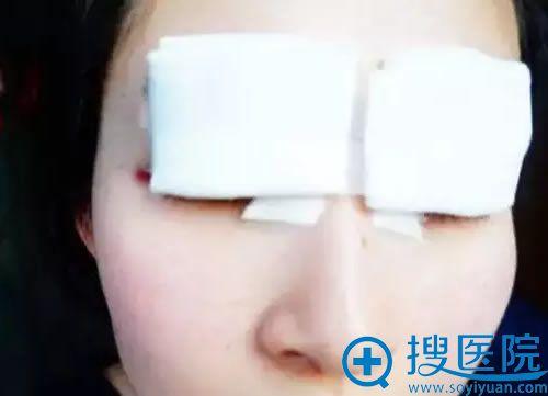 在联合丽格刚做完双眼皮照片