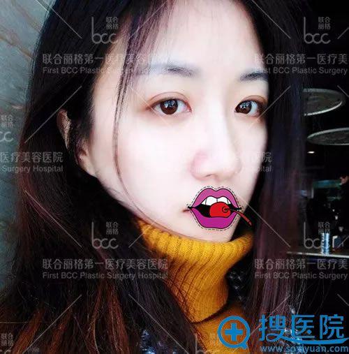 北京联合丽格吴焱秋开眼角案例
