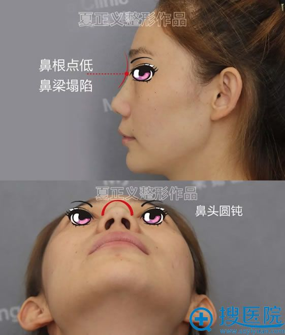 鼻子打了玻尿酸变宽的侧面照