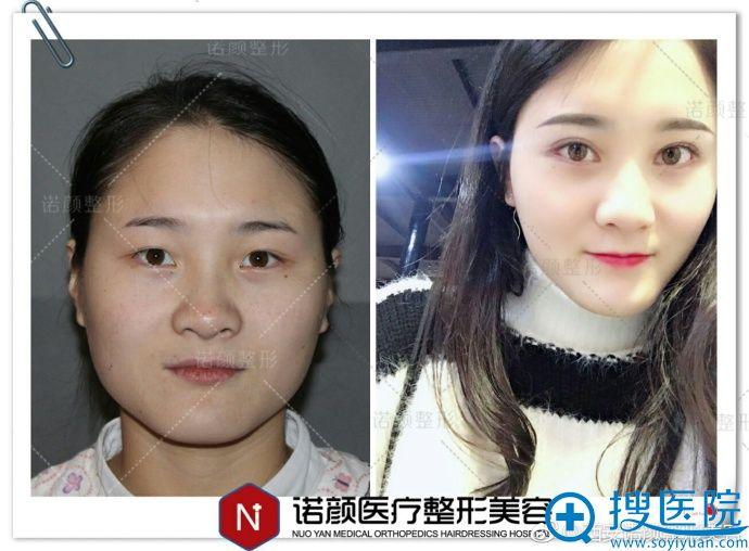 西安诺颜整形美容瘦脸案例
