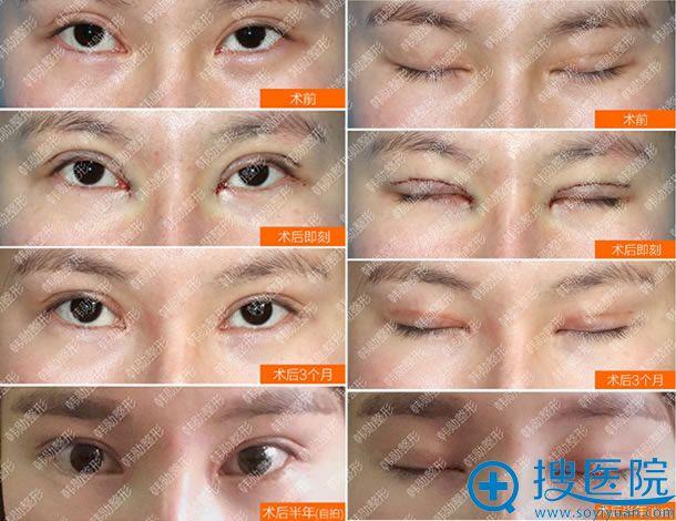 北京韩勋双眼皮和内眼角修复案例