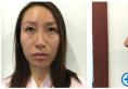 快看我找上海九院整形医生顾清主任做的鼻综合隆鼻案例效果图