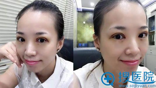 华韩柳民熙做双眼皮和开眼角案例