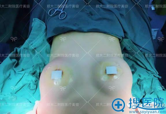 李钢医生为我做完假体隆胸术后效果图