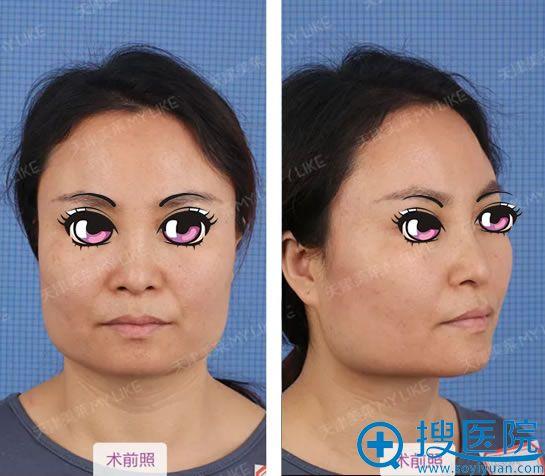 在天津美莱做下颌角手术前