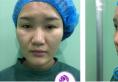 快看我找上海丽质整形医院卢九宁做的鼻综合隆鼻效果怎么样