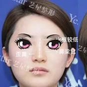 快来看我找北京艺星柳龙春院长做bsk肋软骨综合隆鼻7天内变化