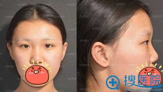 在北京柏丽做眼鼻综合手术前