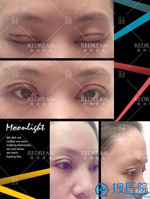 在北京薇琳做完双眼皮术后5天
