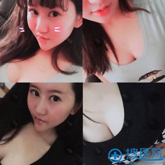 找北京雅靓张春彦做脂肪丰胸后