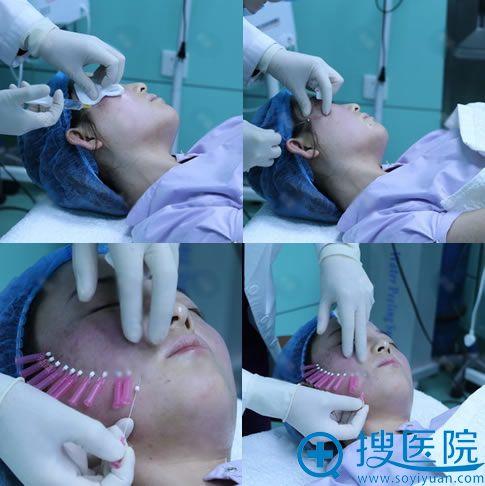 北京欧华王芳做埋线提升术过程