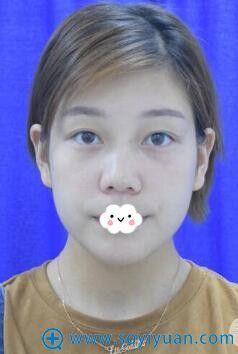 西安西京医院隆鼻+双眼皮真人案例