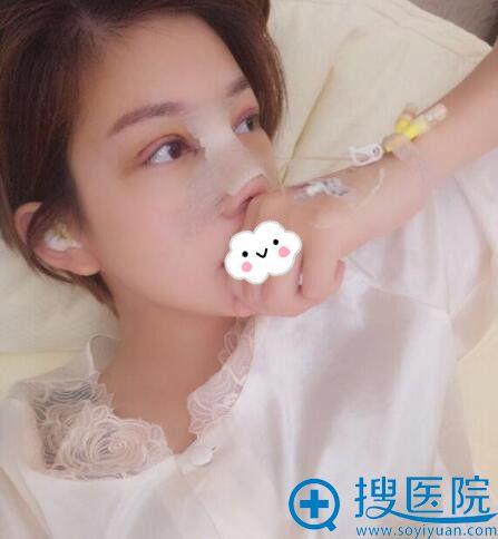 西安西京医院张曦假体隆鼻效果怎么样