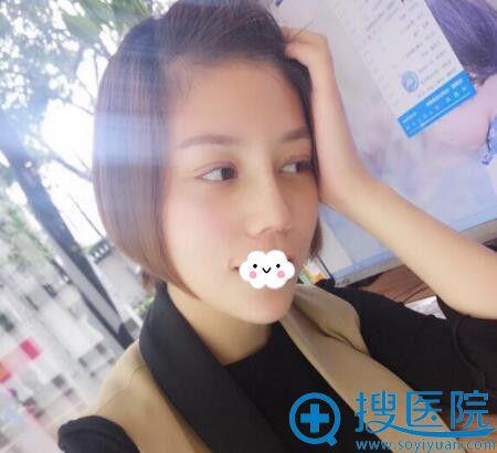 西安西京医院假体隆鼻综合整形效果好吗