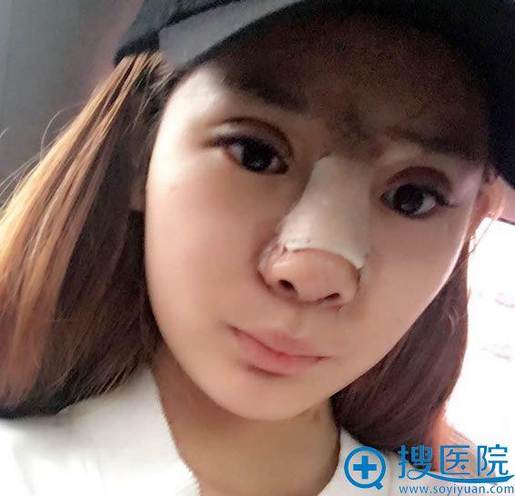 选择北京华韩做双眼皮和隆鼻7天后