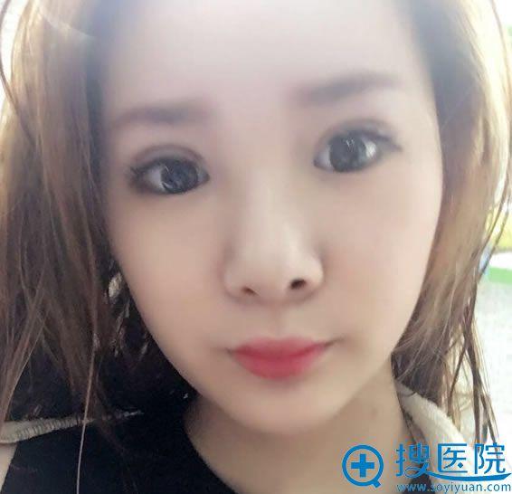 在北京华韩做鼻综合和双眼皮20天后